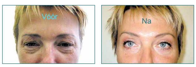 ooglidcorrectie na 1 week